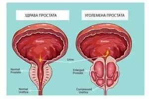 Билки за простата 1