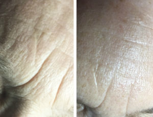 Look Younger with Microneedling in Greenville, SC