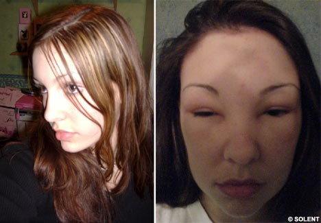 Avoiding Allergic Reactions: Knowing What's In Your Hair Dye Before ...