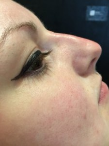 after non surgical rhinoplasty 15 minute nose job