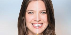 nashua-invisalign-dentist