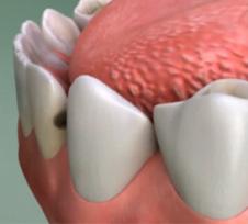 Nashua-Dentist-Filling-illustration