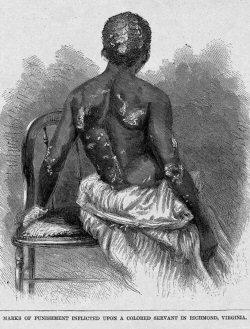 Esclave brûlée et torturée par sa maîtresse, Richmond, Virginie, E.U, 1866.