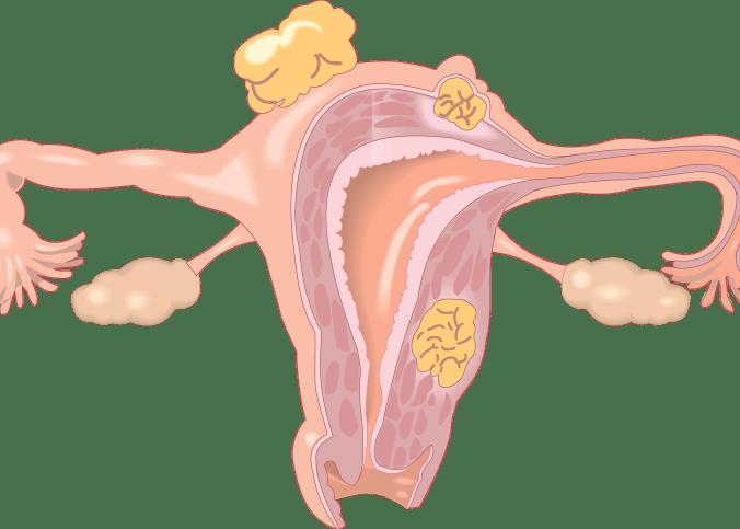 baarmoeder