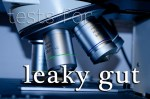 Tests for Leaky Gut Syndrome