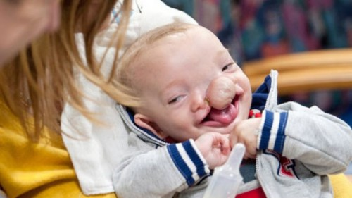 Doctors at Boston Children's Hospital Give A Special Gift ...