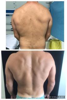Lipo vaser esquena