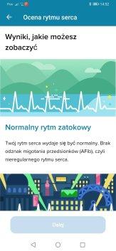 Fitbit Sense test EKG (3)
