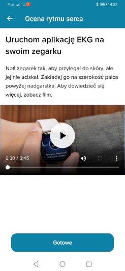 Fitbit Sense test EKG (5)
