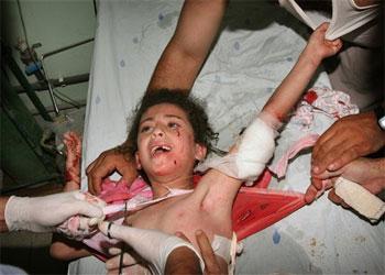 Niños heridos