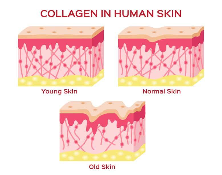 imagem que mostra a ação do colágeno na pele jovem, adulta e velha