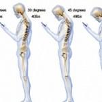 Inclinar pescoço para mexer no celular afeta coluna, diz estudo