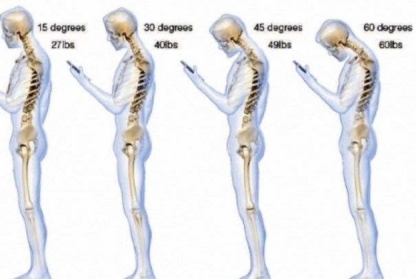 Com o pescoço inclinado a 60º para mexer no smartphone, o impacto na coluna do usuário chega a 27 kg