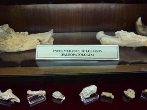 Museo Histórico-Minero - Huesos con enfermedades.