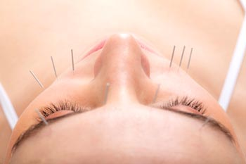 Qué es la acupuntura