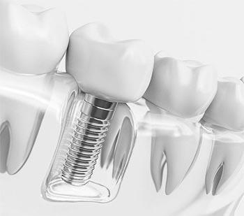 Implantes dentales Santander
