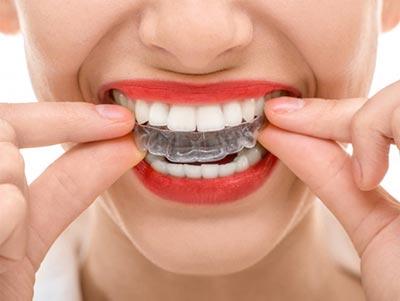 Cómo elegir una buena clínica dental
