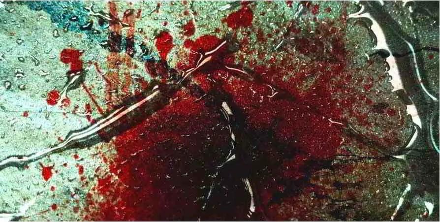 Il Sangue Nei Sogni Cosa Significa Sognare Sangue Che Esce