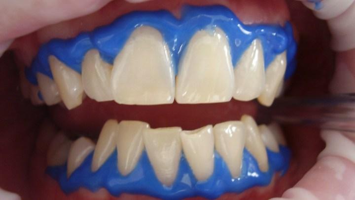 Blanchiment de dents : ce qu'il faut savoir avant de passer le cap