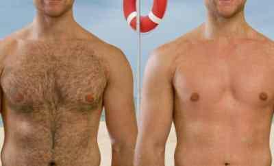 Avant et après rasage du torse