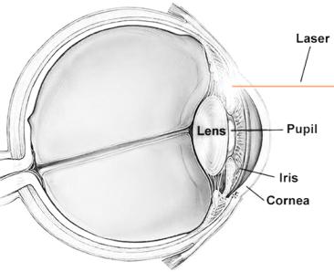 Laser Peripheral Iridotomy (LPI) diagram