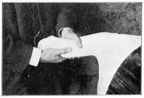 Massaging the Arm.