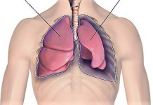 akciğer su toplaması bitkisel çözüm