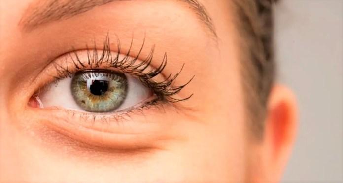 göz altı morluk