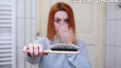 Photo of Saç Dökülmesine Faydası Olan Yağlar Nelerdir