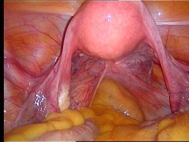 fig1_endoscopy