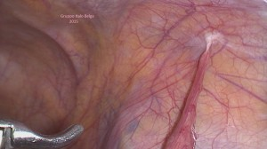 infertiliteit, fertilteitschirurgie, endometriose, laparoscopische chirurgie, images