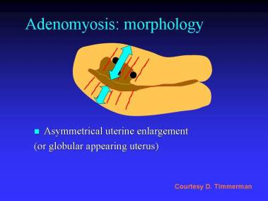 ultrasound and adenomyosis