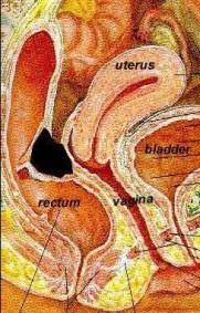 deep endometriosis rectovaginal