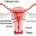 endometriose overzicht