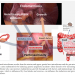 Pathophysiology of endometriosis