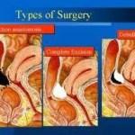 Tpes of deep endometriosis