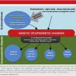 Pathophysiology of endometriosis: The genetic epigenetic theory