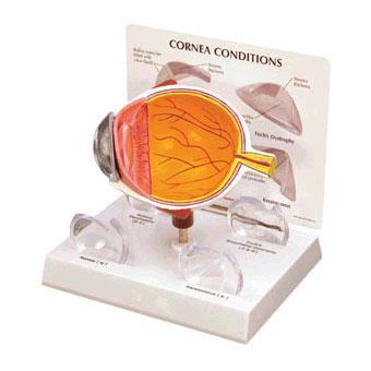 GBM006-Cornea