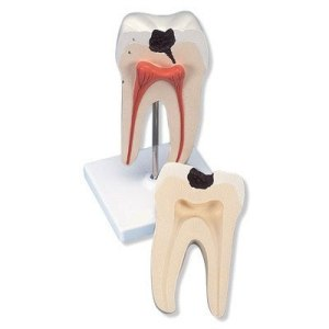ZKH807B-Molar_Tooth