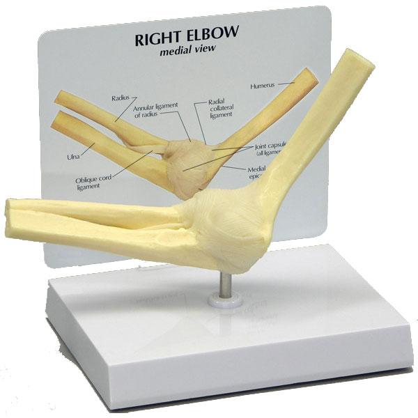 GBM041-elbow