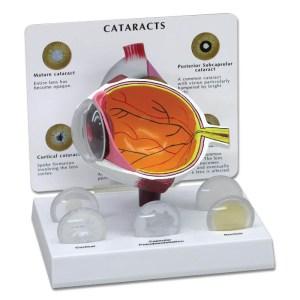 gbm045-Cataract Eye