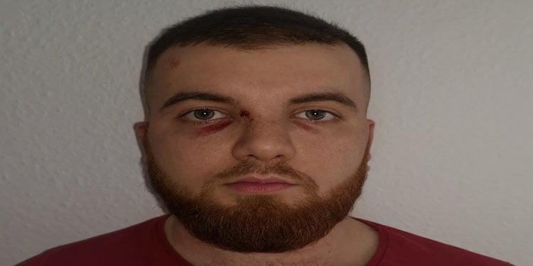 Polizei burnunu kırdı