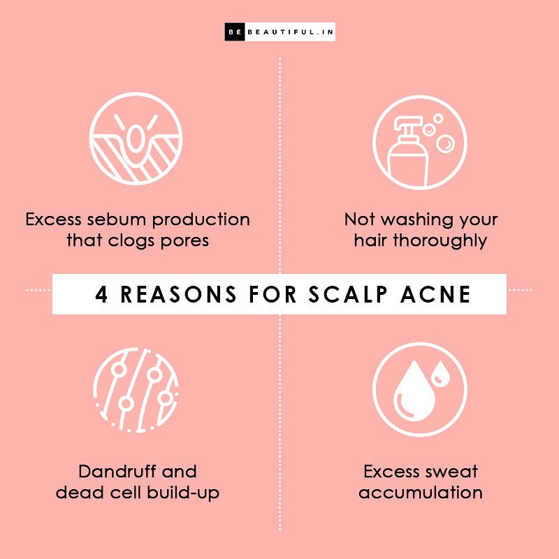 Pimples on Scalp Reasons and Home Remedies