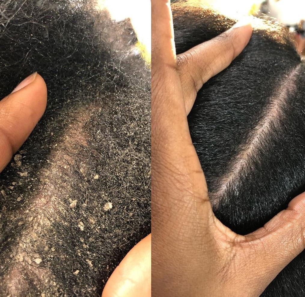 Best Scalp Salon Treatments