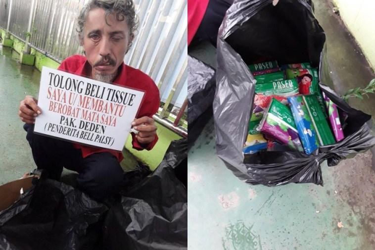 Viral penjual tisu penderita Bell's Palsy yang bikin netizen iba, hidupnya sebatang kara