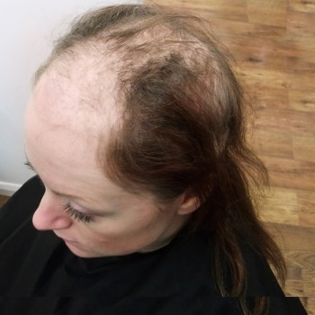 female client with trichotillomania