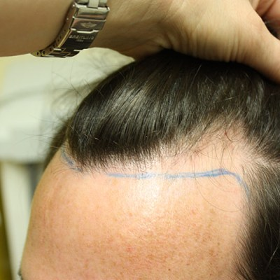 Pre Hair Transplant 1