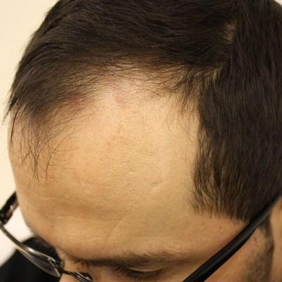 Pre Hair Transplant 2b