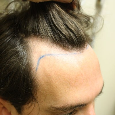 Pre Hair Transplant 3