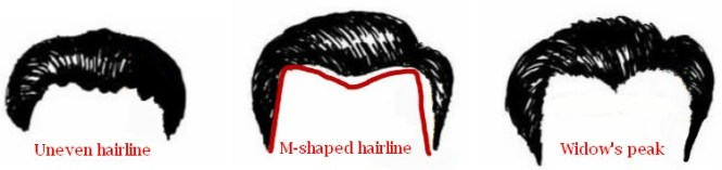 Receding hairline men: style and types of hairlines